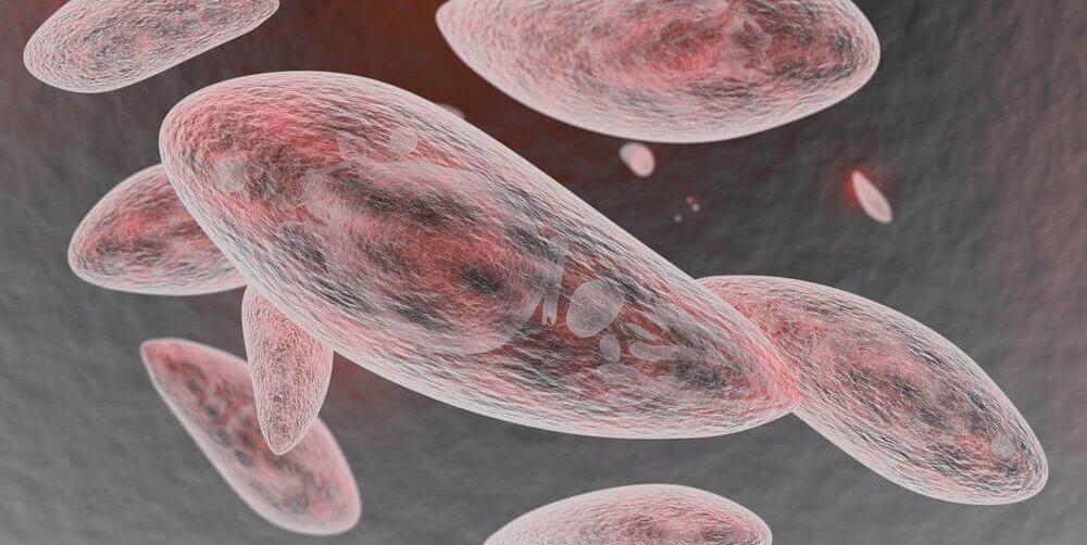 Toxoplazmóza v tehotenstve